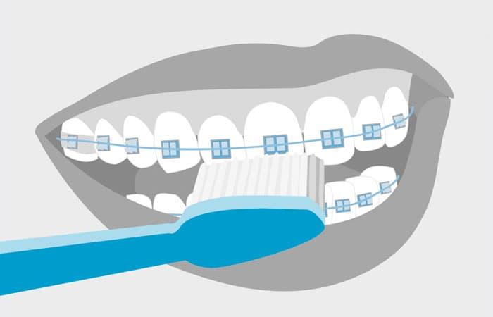 А Вы правильно чистите зубы?