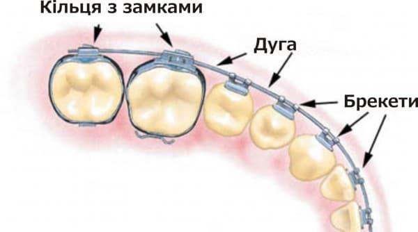 Брекет-система