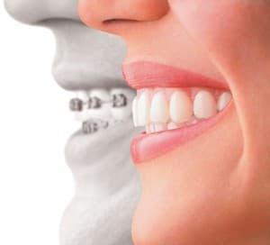 Известно ли Вам кто такой ортодонт?